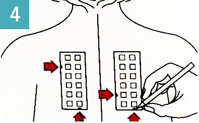 医療用マーキングペンで切れ込み部分に印をつける